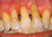 periodontal-treatment